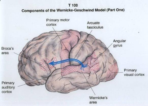 wernickes aphasia disorder essay